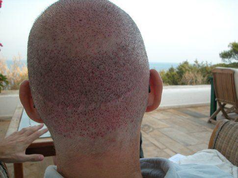 tecnica strip con evidente cicatrice nella zona occipitale