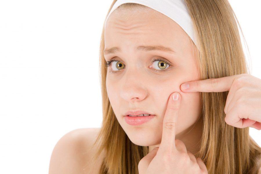 Posti sulla faccia al dermatologo di 30 anni