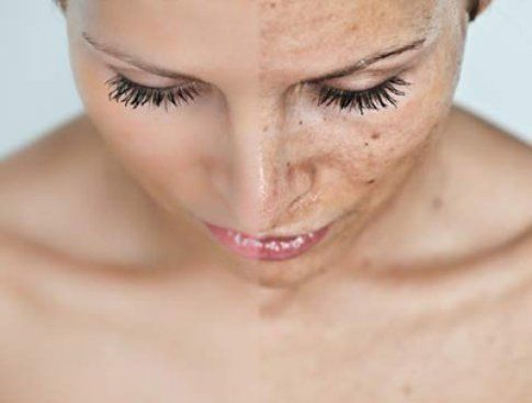 Macchie del viso: come prevenirle e curarle