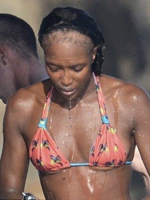 Alopecia frontale di Naomi