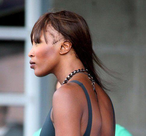 Alopecia laterale di Naomi