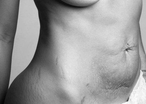 A beautiful body