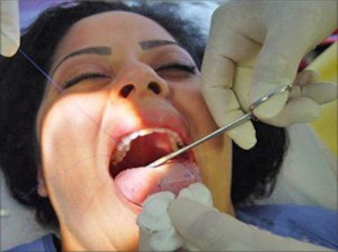 cucitura durante l'intervento