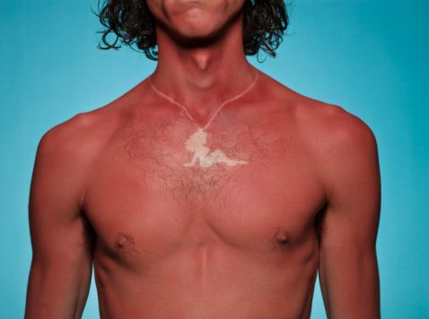 Sunburned guy with mud flap girl burnt on his chest