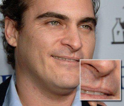 Joaquin Phoenix ha il labbro leporino