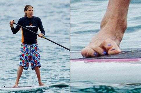 Steven Tyler ha un piede deformato