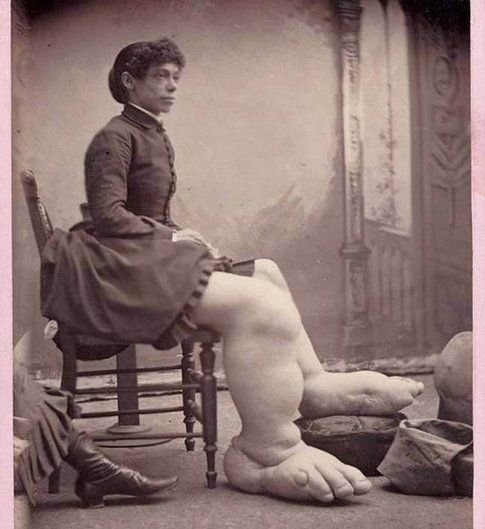 "Fannie Mills, ""The Ohio Big Foot Girl"""