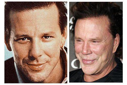 Mickey Rourke prima e dopo la chirurgia