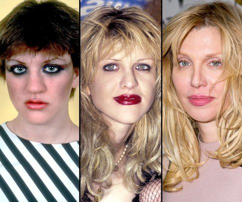 Courtney Love prima e dopo la chirurgia