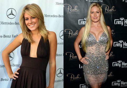 Heidi Montag, star di The Hills, prima e dopo la chirurgia