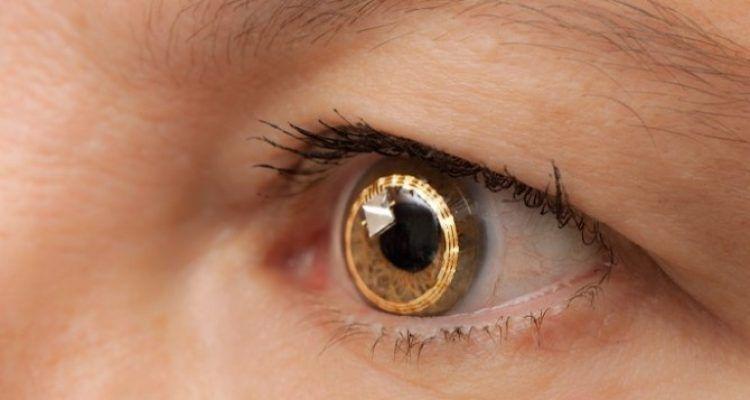 Le lenti a contatto con telescopio incorporato bigodino - Specchi e lenti ...