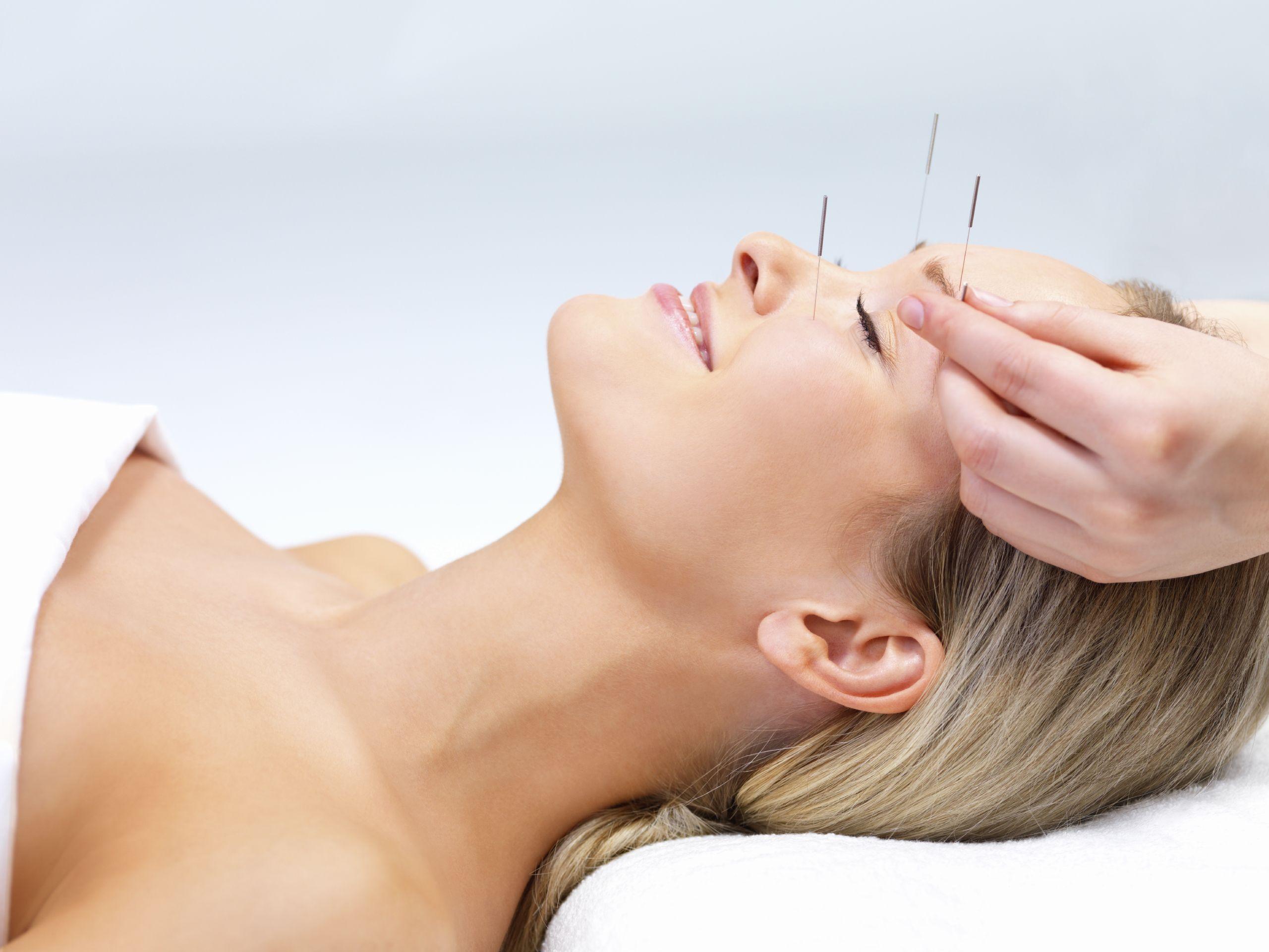 Agopuntura, il nuovo segreto di bellezza