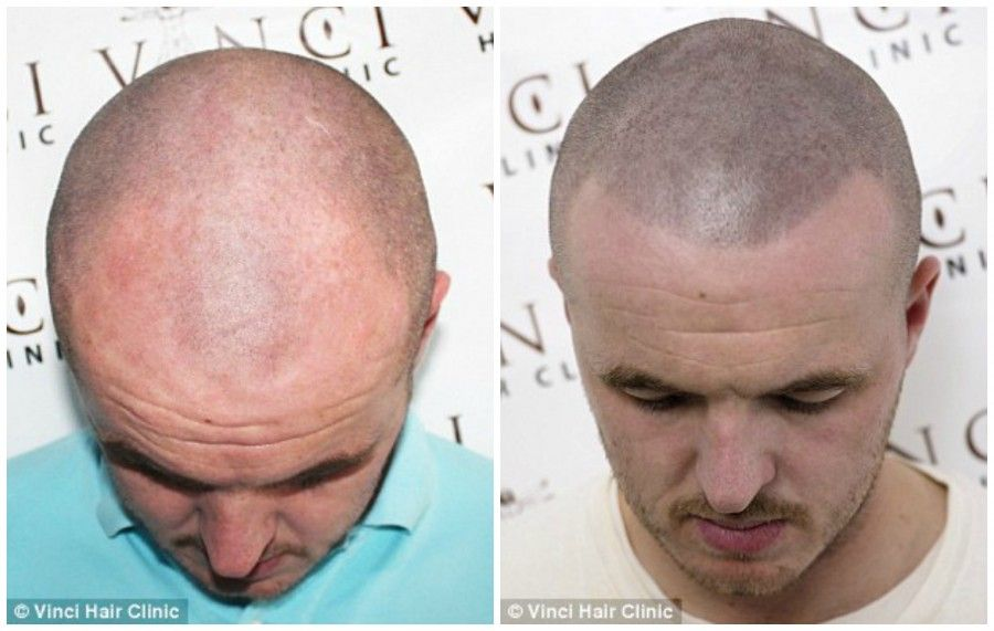 Maschere utili per trattamento di capelli