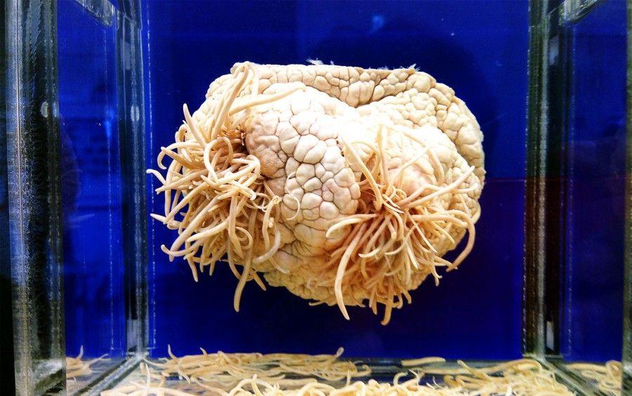 Meguro Parasite Museum - Museo dei Parassiti