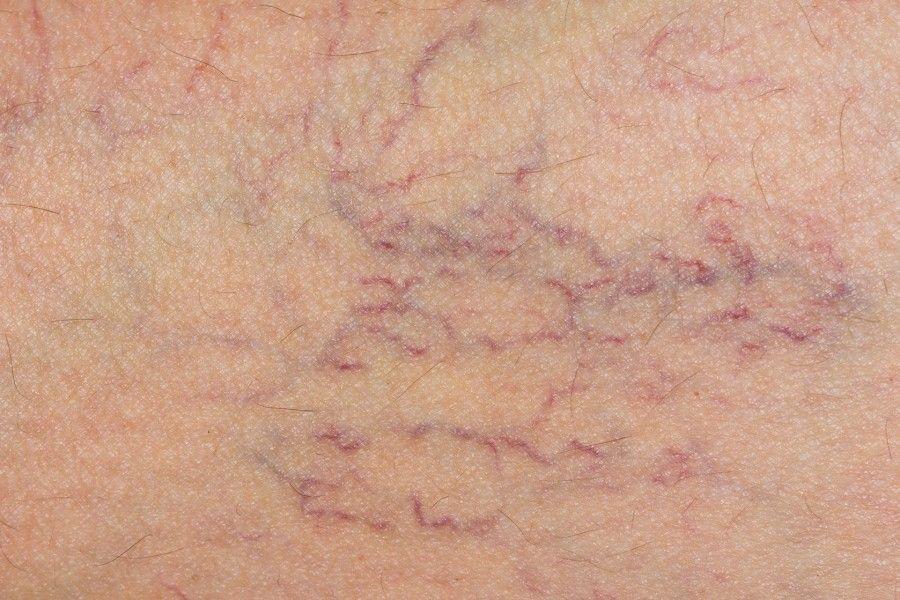 capillari-teleangectasie-gambe