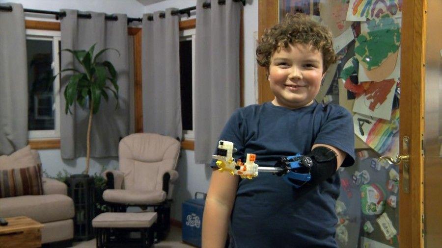 protesi-lego-bambino