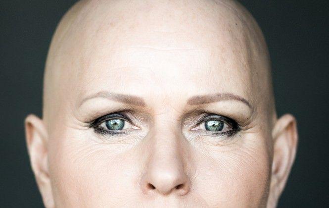 7 ritratti mozzafiato di donne femminili anche con l'alopecia