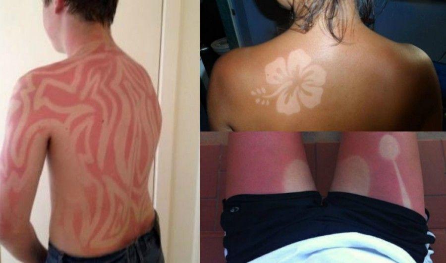 sunburn-art
