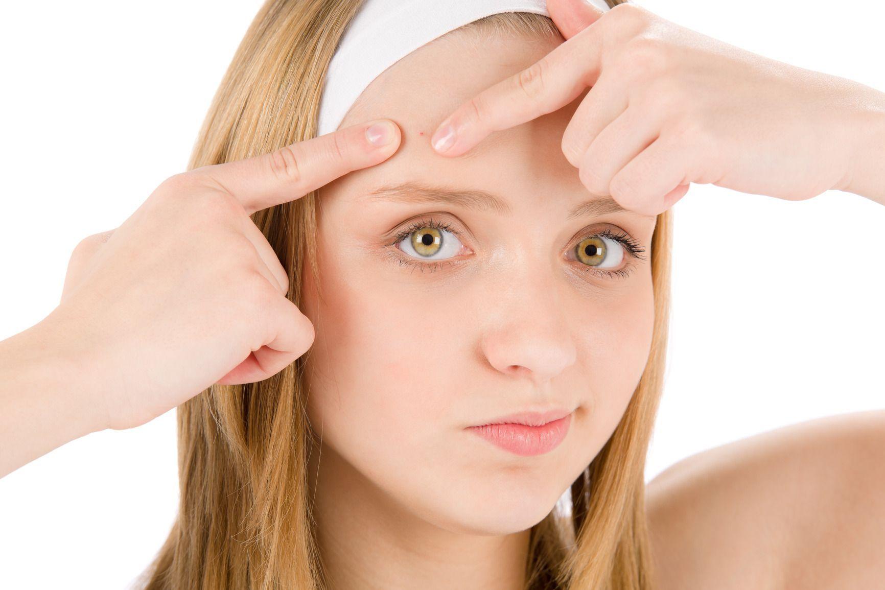 Acne: creme e prodotti make up per coprire le imperfezioni