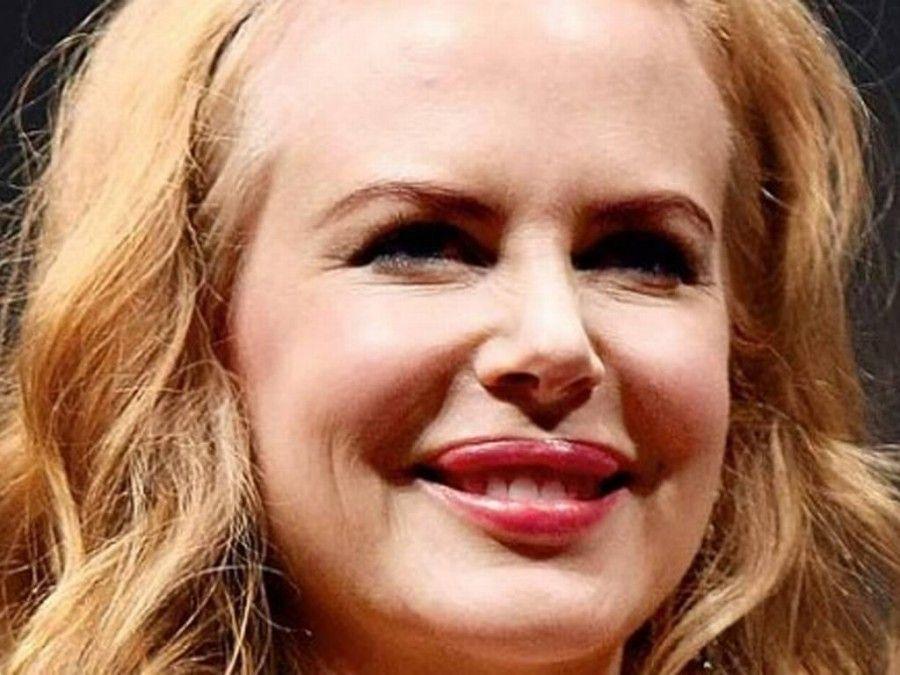 Nicole Kidman si è pentita del botox