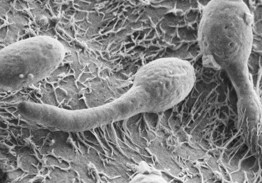 Come liberarsi da un fungo tra rimedi di gente di dita del piede