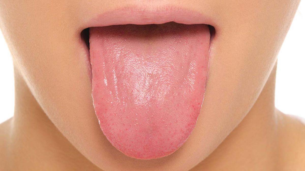 lingua-sana
