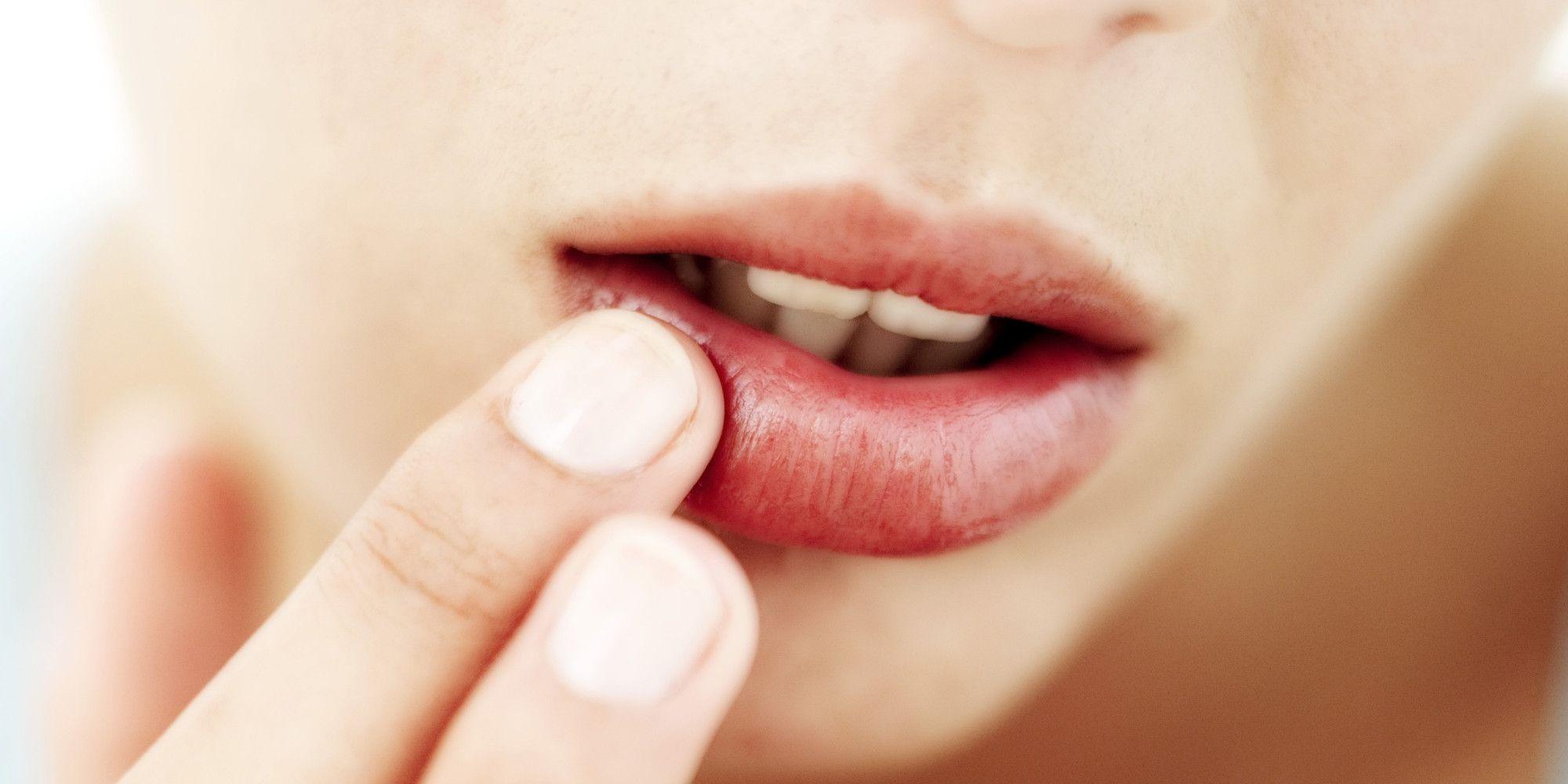 Perchè dovresti perdere il vizio di tirar via la pelle secca dalle labbra