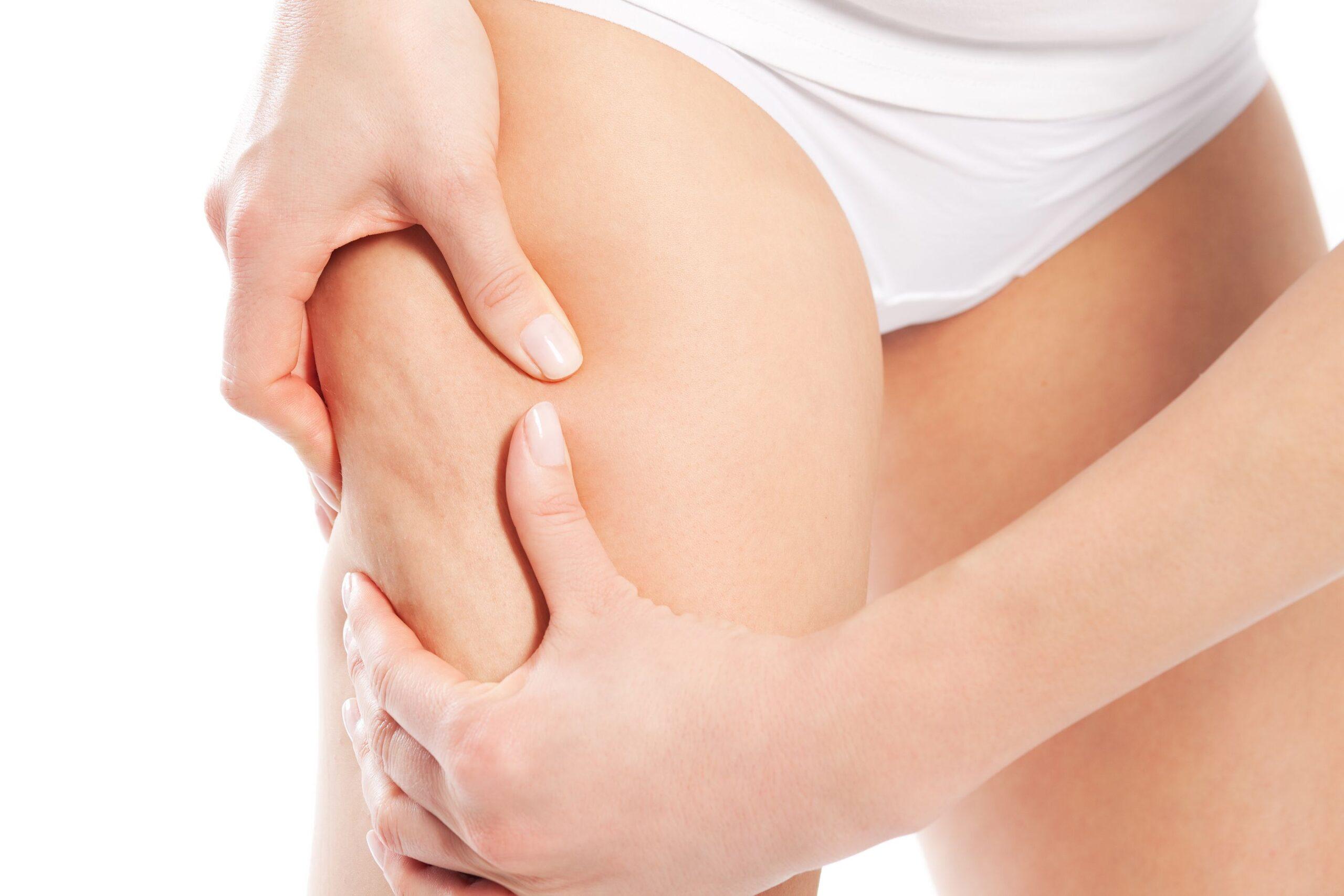 cellulite-esercizi