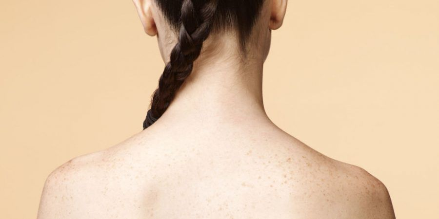 acne-schiena