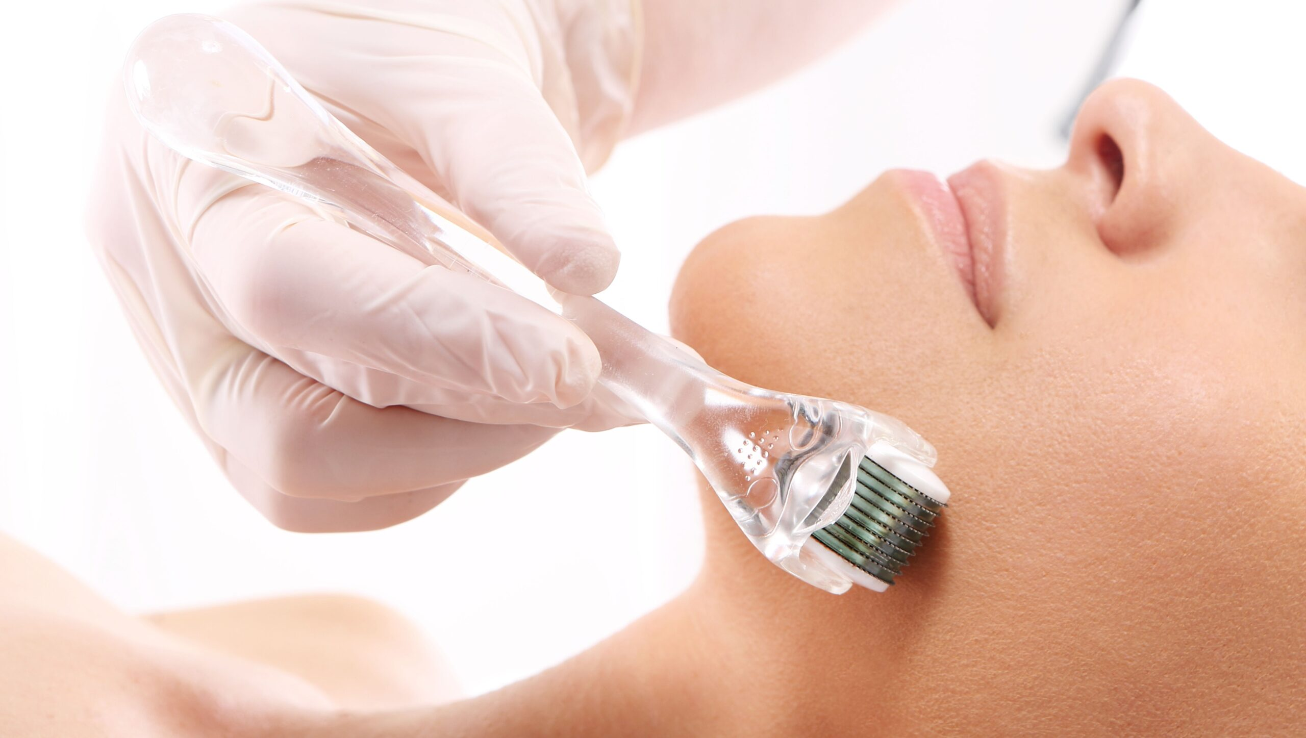 Derma Roll: come avere una pelle perfetta usando gli aghi
