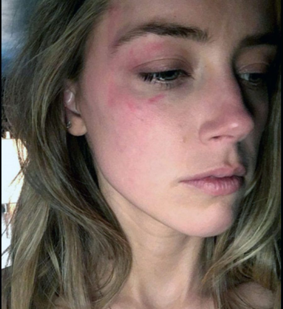 Amber Heard accusa Johnny Depp di violenza domestica