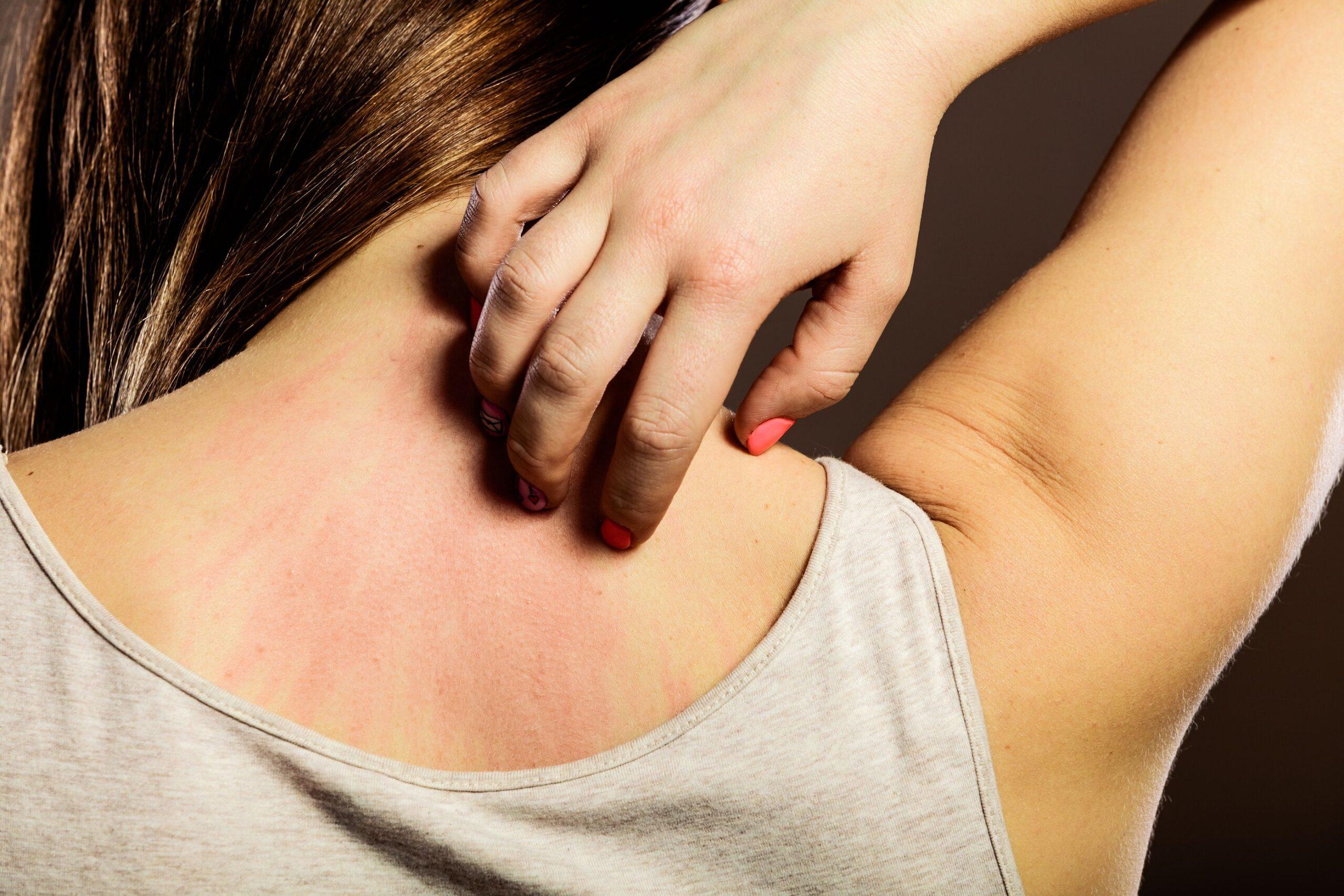 Eczema, cos'è? Cause e sintomi