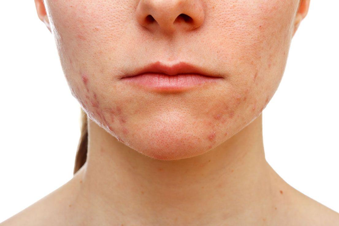 Avere l'acne a trent'anni: perchè succede e i rimedi naturali per controllarla