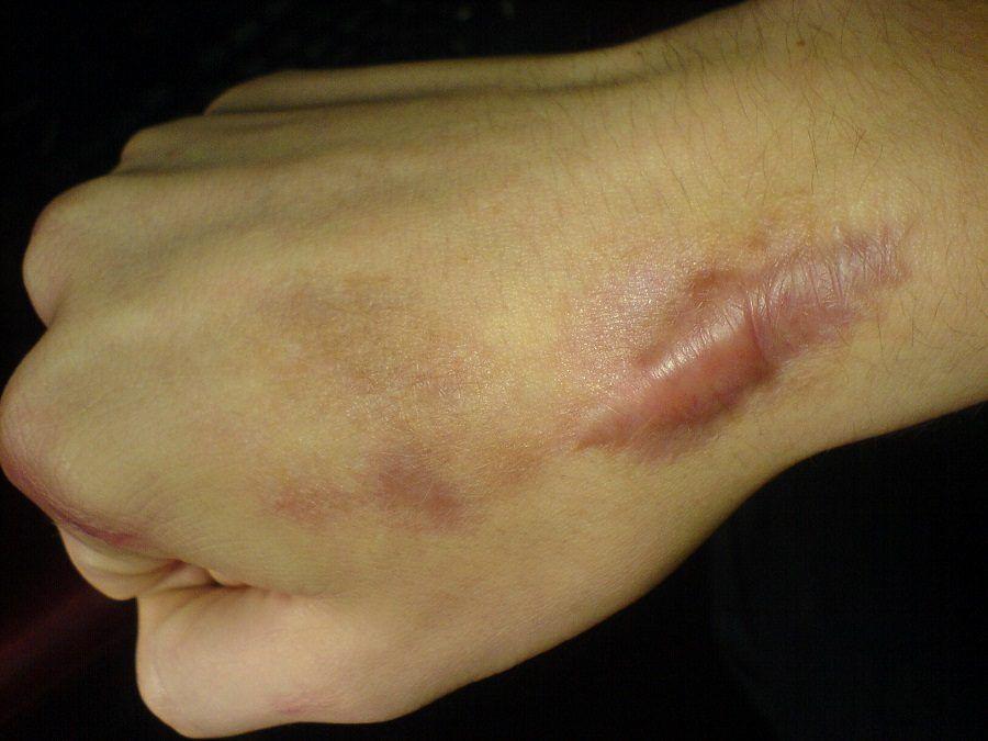 Un cheloide cicatriziale