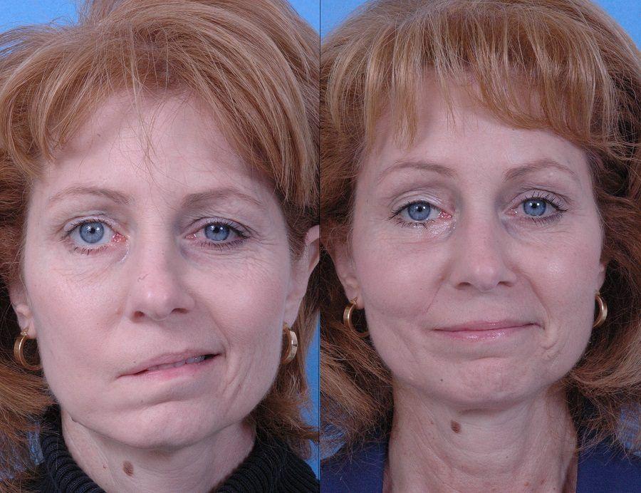 Foto del prima e dopo di un intervento di chirurgia plastica