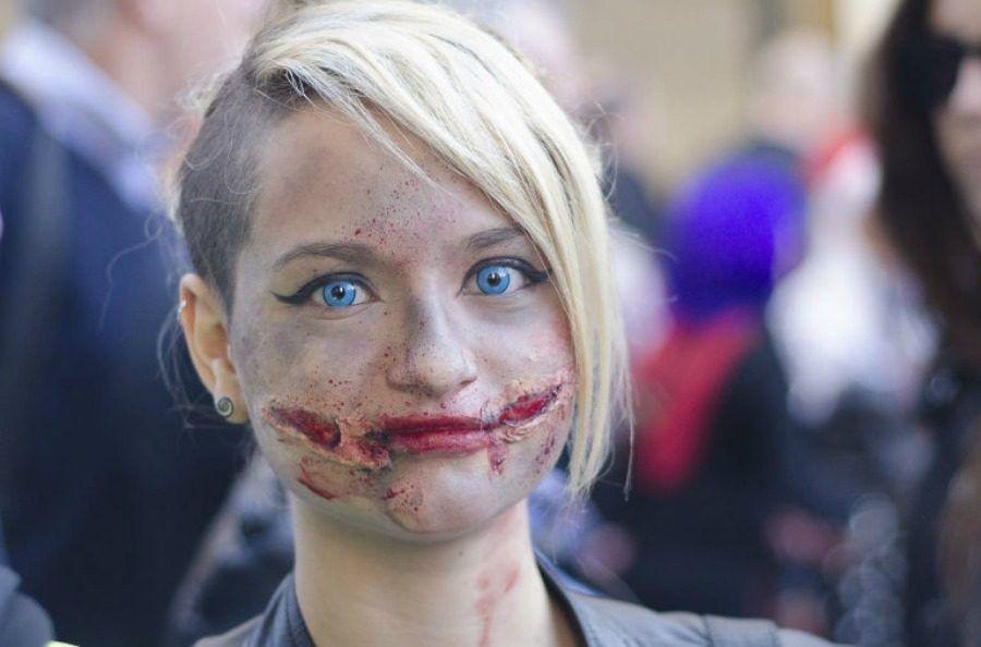 lesioni-bocca