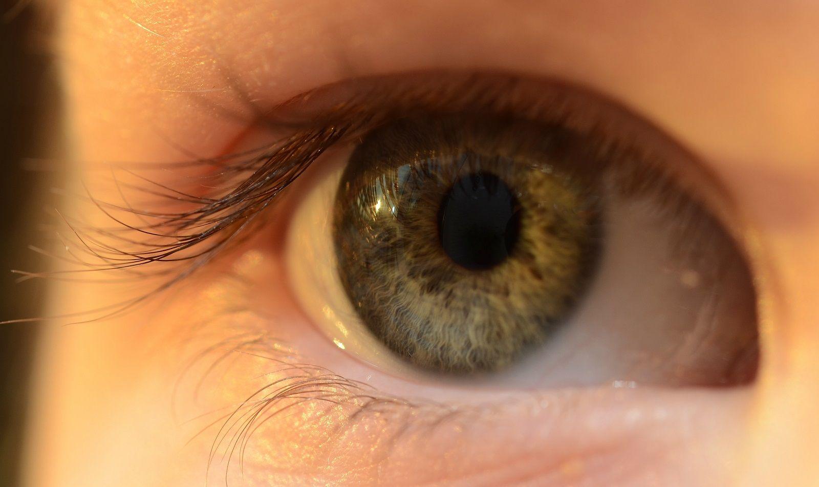 Come ridurre le zampe di gallina intorno agli occhi con rimedi naturali