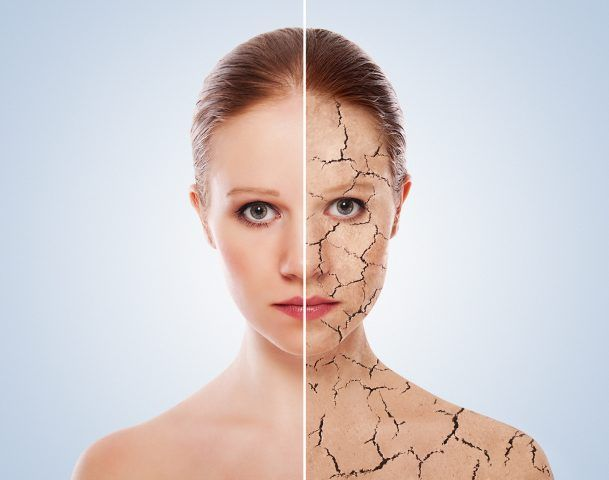 La pelle tende a tirare perché è disidratata, diventando secca e opaca.