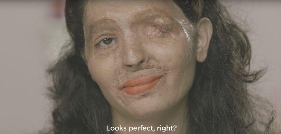 Reshma, la ragazza vittima dell'acido muriatico