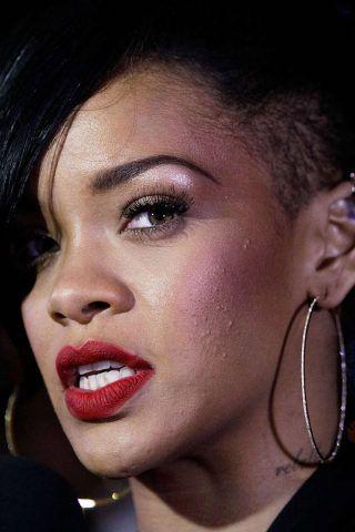 Rihanna è una delle tante star, comunque bellissime, con problemi di acne.