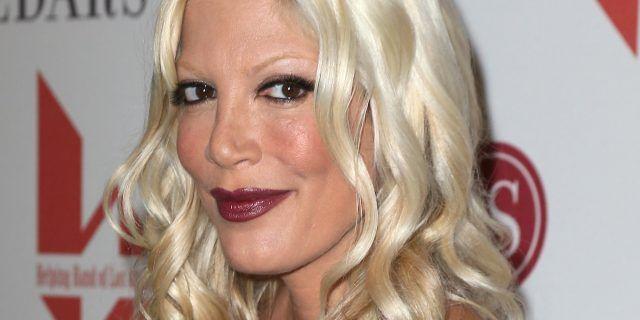 Ve la ricordate Donna di Beverly Hills? Tori Spelling e la sua pelle non proprio perfetta.
