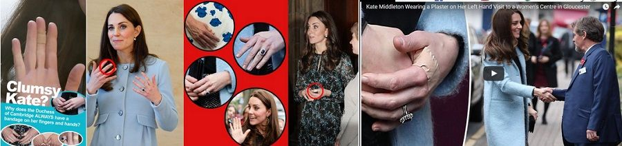 I cerotti sulle mani di Kate Middleton