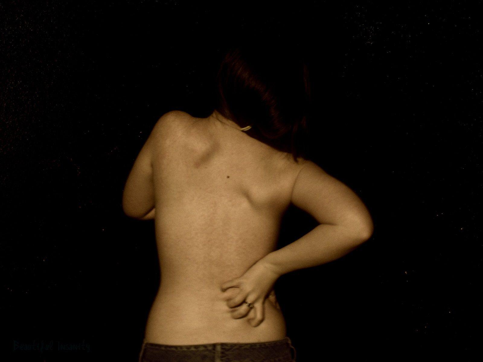 Qual è la differenza fra distorsione, lussazione e strappo muscolare?