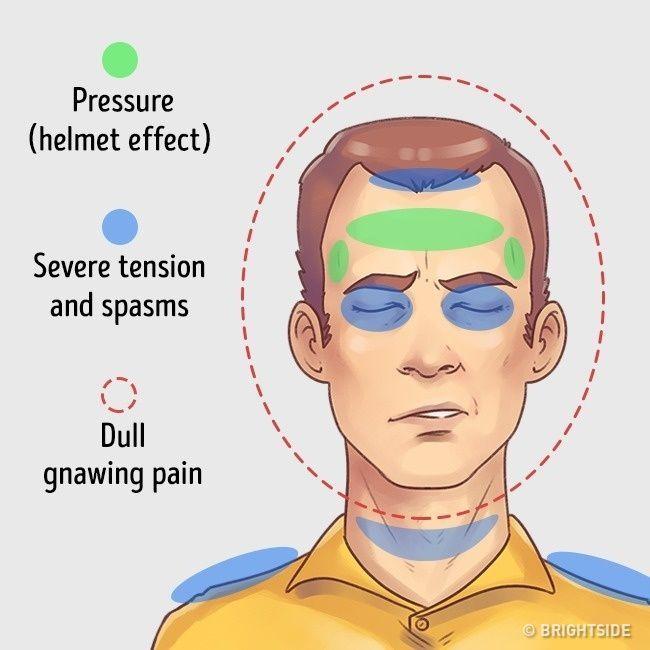 Mal di testa da tensione