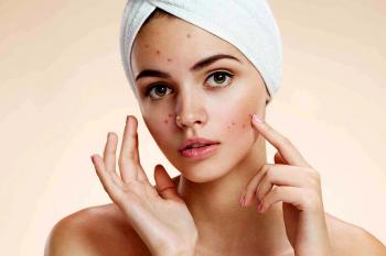 Ecco come inconsapevolmente ci causiamo l'acne