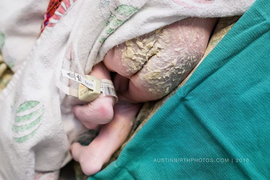 La prima difesa dei neonati