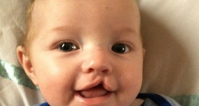 labbro leporino neonato