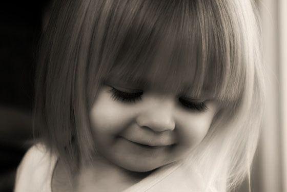 labbro leporino in un bambino