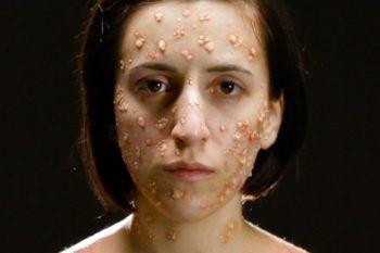 Come le malattie infettive cambiano il nostro corpo