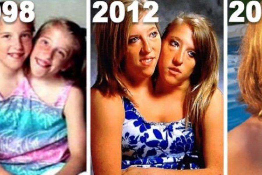 Abby e Brittany, le gemelle siamesi più famose al mondo